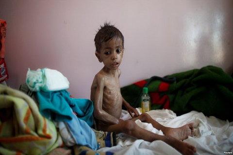 کودک» یمنی