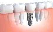 راهکار جدید برای تشخیص التهاب ایمپلنت دندان