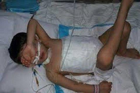 کودک شوقانی که توسط سگ دریده شده بود، جان باخت