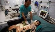 شمار قربانیان وبا در یمن به ۲۱۰۱ نفر رسید/۶۹۸ هزار مورد ابتلا