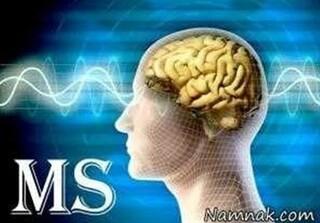 نایبرئیس انجمن MS ایران