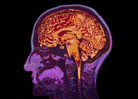 دستگاه تصویربرداری مادون قرمز مغز