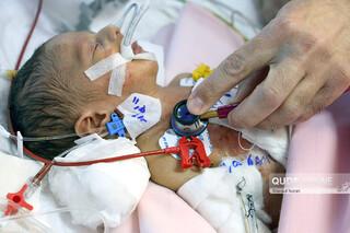 جراحی موفقیتآمیز قلب نوزاد نارس در بیمارستان رضوی